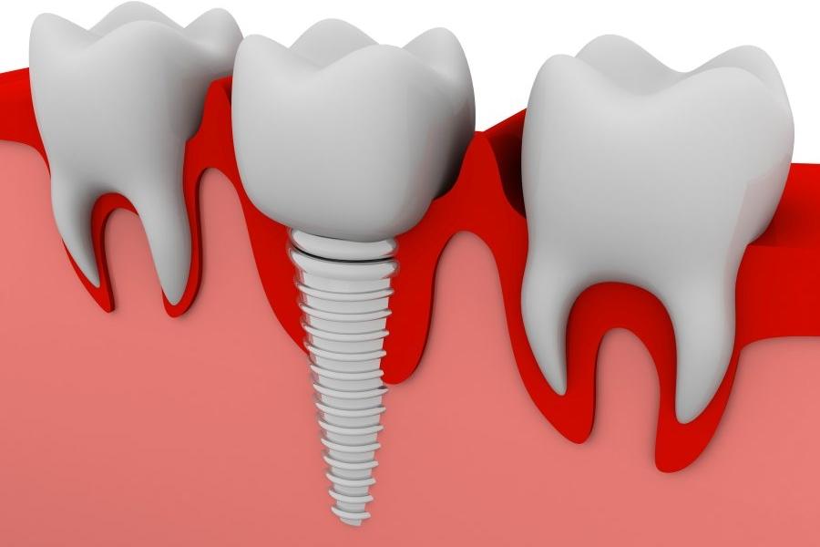 Implantologia - schemat poglądowy