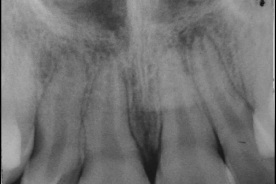 Stomatologiczne zdjęcie rtg.