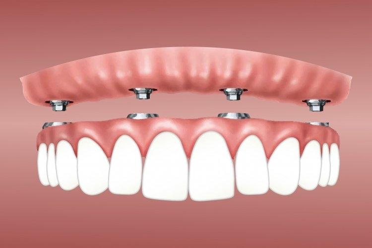 Model poglądowy protezy na implantach